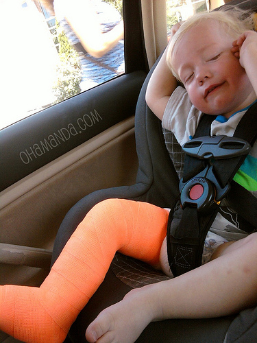 how to tell if toddler thumb is broken